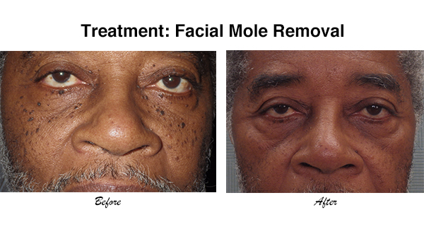 Mole Amp Skin Tag Removal South Side Chicago Dentist
