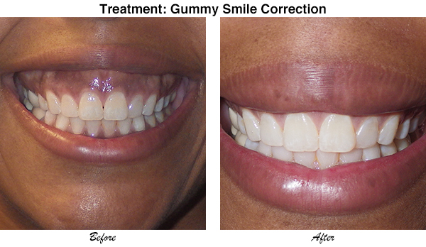 McCullom Gummy Smile Correction 1