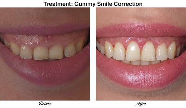 McCullom Gummy Smile Correction 2