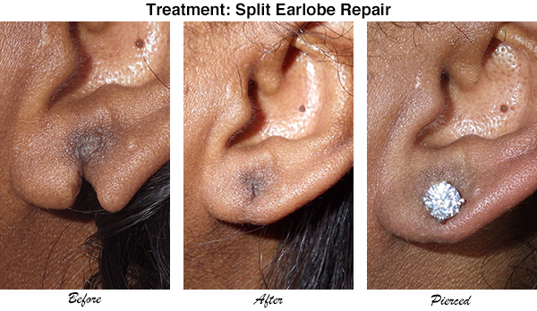 Mccullom Split Earlobe Repair 1
