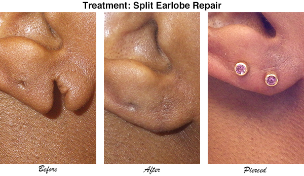 McCullom Split Earlobe Repair 2