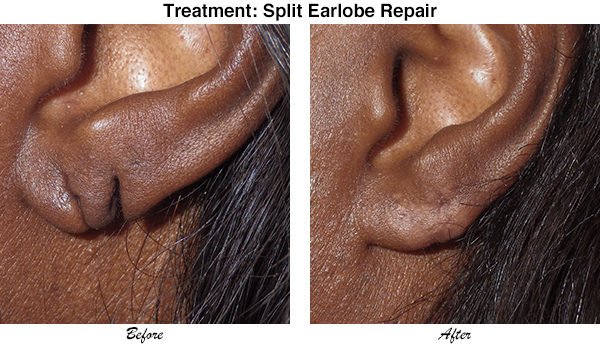 McCullom Split Earlobe Repair 3